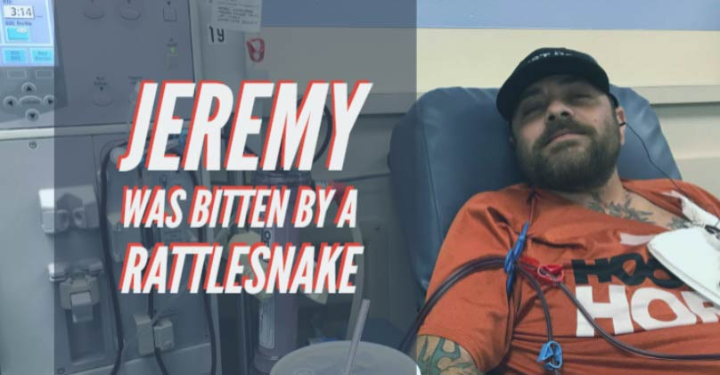 Jeremy was bitten by a rattlesnake