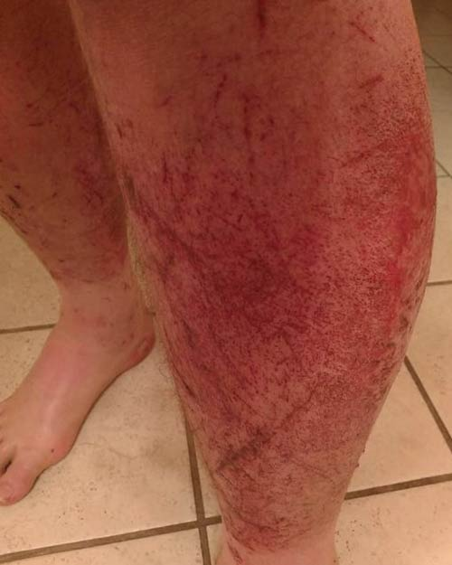 John's leg