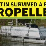 Justin survived a boat propeller